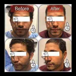 عملية تصغير الاذن الخفاشية و تصغير شحمة الأذن مع افضل دكتور تجميل في مصر دكتور رامي العناني
