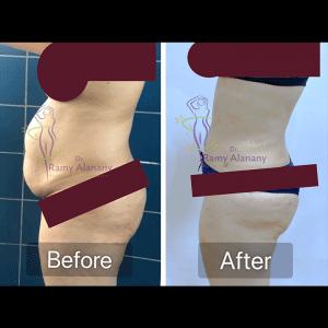 نحت الجسم و التطور الاحدث لعملية شفط الدهون بالفيزر - عملية شفط الدهون - شفط دهون البطن و الاجناب