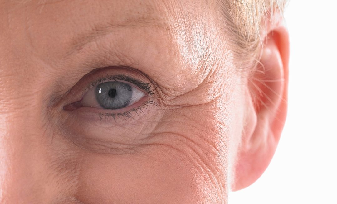البوتوكس وعلاج تجاعيد الوجه