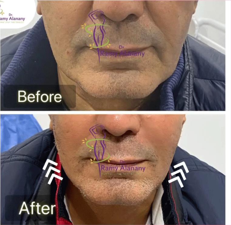 ( الفيلر للوجه قبل وبعد) ( الفيلر المدمج ) احدي حالات دكتور رامي العناني قبل و بعد حقن (الفيلر ) -