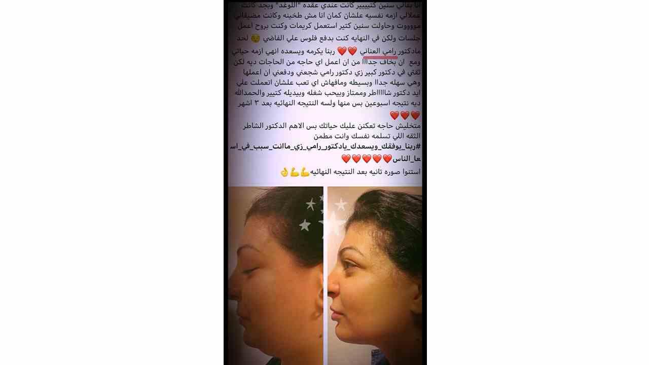 النحت الايوني للغد للصحفية سلمي عبد العزيز