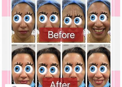 البوتكس من المواد التى لها الكثير من الفوائد لتساعد فى علاج إزالة التجاعيد بالوجه والجبهه وحول العين