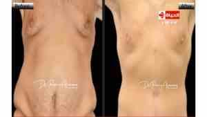تهدف جراحة شد البطن لإزالة الجلد الزائد وتقوية عضلات البطن و حينما يكون هنالك جلد زائد بكميات كبيره
