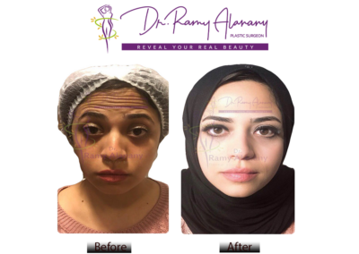 ما هو البوتكس : حقن البوتكس هو علاج تجاعيد الوجه و يساعد علي ازالة التجاعيد حول العين في 5 دقائق