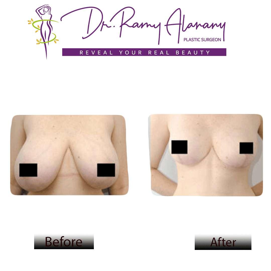 عمليات تجميل الثدي - عملية شد الصدر - عملية شد الثدي - طريقة تصغير الثدي - درجات ترهل الثدي