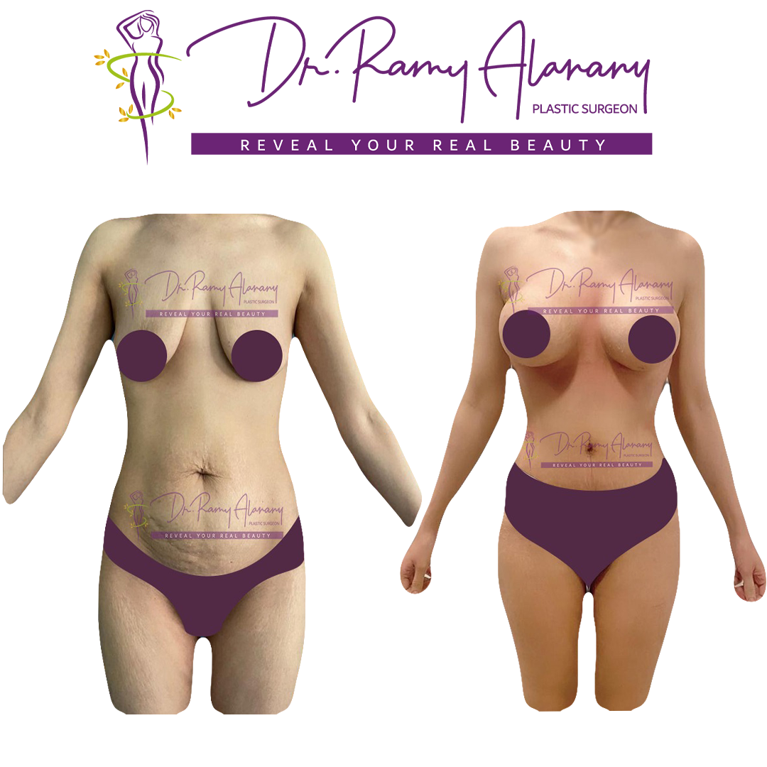 شد البطن - عملية شفط الدهون tummy tuck - شفط دهون البطن و شد ترهلات البطن و الاجناب